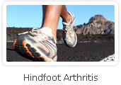 Hindfoot Arthritis - Victorian Orthopaedic Foot & Ankle Clinic