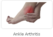 Ankle Arthritis - Victorian Orthopaedic Foot & Ankle Clinic