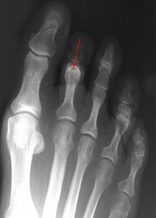 Pre Operative - Bent Knuckle Joint - X-ray - Victorian Orthopaedic Foot & Ankle Clinic