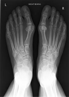 Hallux Valgus Deformities - X-ray - Victorian Orthopaedic Foot & Ankle Clinic