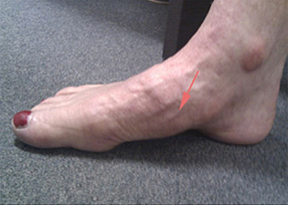 Victorian Orthopaedic Foot Ankle Clinic Sports Injuries Arthritic Conditions Richmond Vic