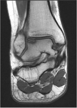 Osteochondral Defect - MRI - Victorian Orthopaedic Foot & Ankle Clinic