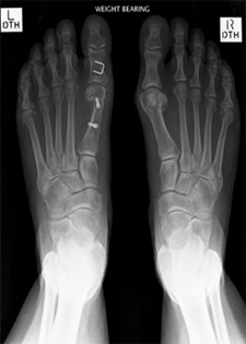 Post Operative - Hallux Valgus Deformities - X-ray - Victorian Orthopaedic Foot & Ankle Clinic