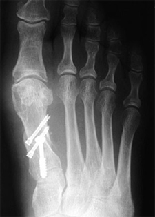 Post Operative - Hallux Valgus - X-ray - Victorian Orthopaedic Foot & Ankle Clinic