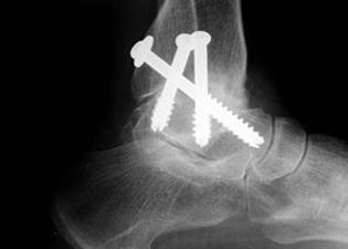 traumatic arthritis