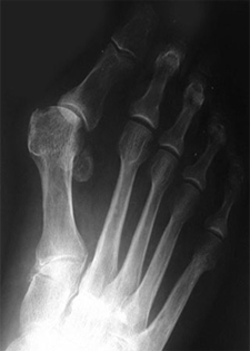 Pre Operative - Hallux Valgus - X-ray - Victorian Orthopaedic Foot & Ankle Clinic